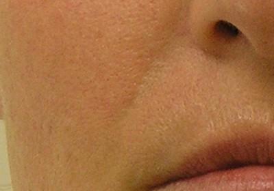 Kosmetikstudio ONE in Wallisellen - Zürich. Die Experten für effektive Anti-Aging Therapien und Laser-Haarentfernung. Hydrafacial, Jetpeel, IS Clinical & QMS